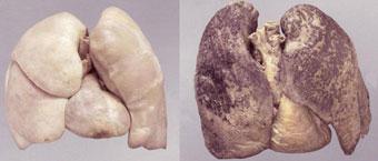 Курение — разрушитель генетического кода